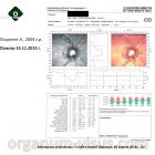 Refraction. Клинический пример 4. Миопия слабой степени. Офтальмогипертензия. Очки Perifocal. Рис. 3.