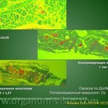 Жукова О.В. Морфология глазодвигательных мышц при косоглазии. Доклад на РООФ-2013 (AROF-2013) Информационный партнер www.organum-visus.com