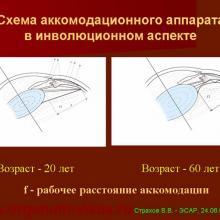 Аккомодация - Страхов В.В.